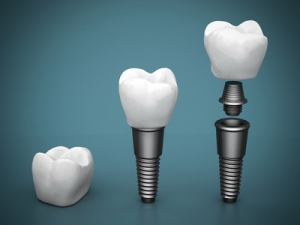 three tooth implants